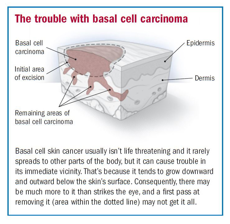 Basal Cell Carcinoma Overview Harvard Health