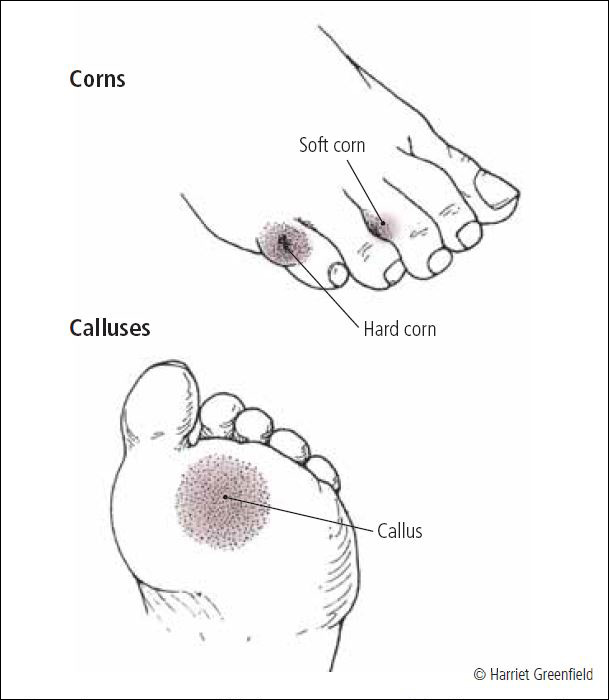how to get rid of soft corns on your toes