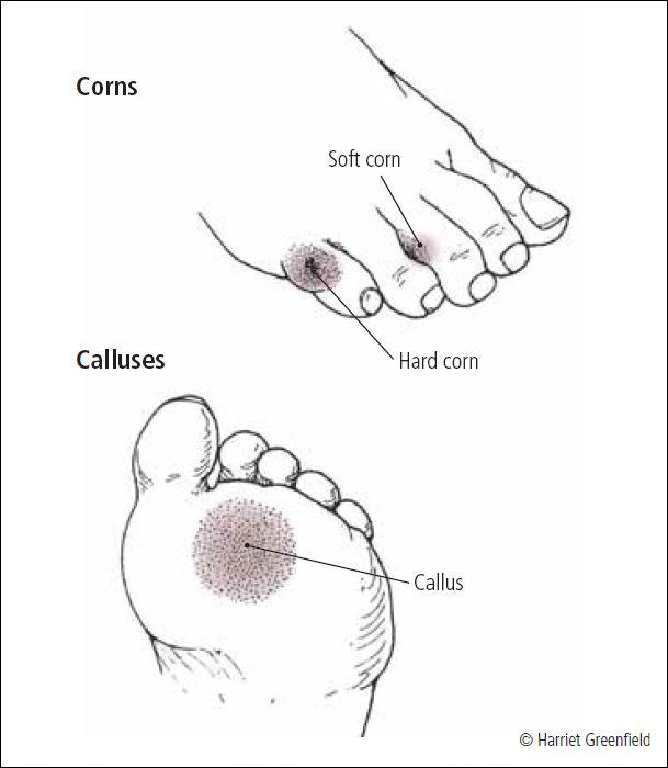 Calluses and corns - Harvard Health