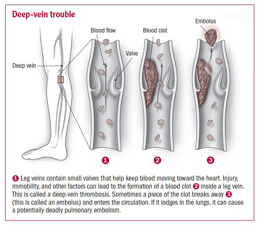Deep vein thrombosis - Harvard Health Venous Thrombosis Treatment