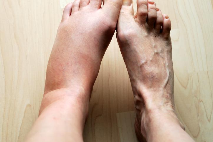 Concerns about swollen legs - Harvard Health