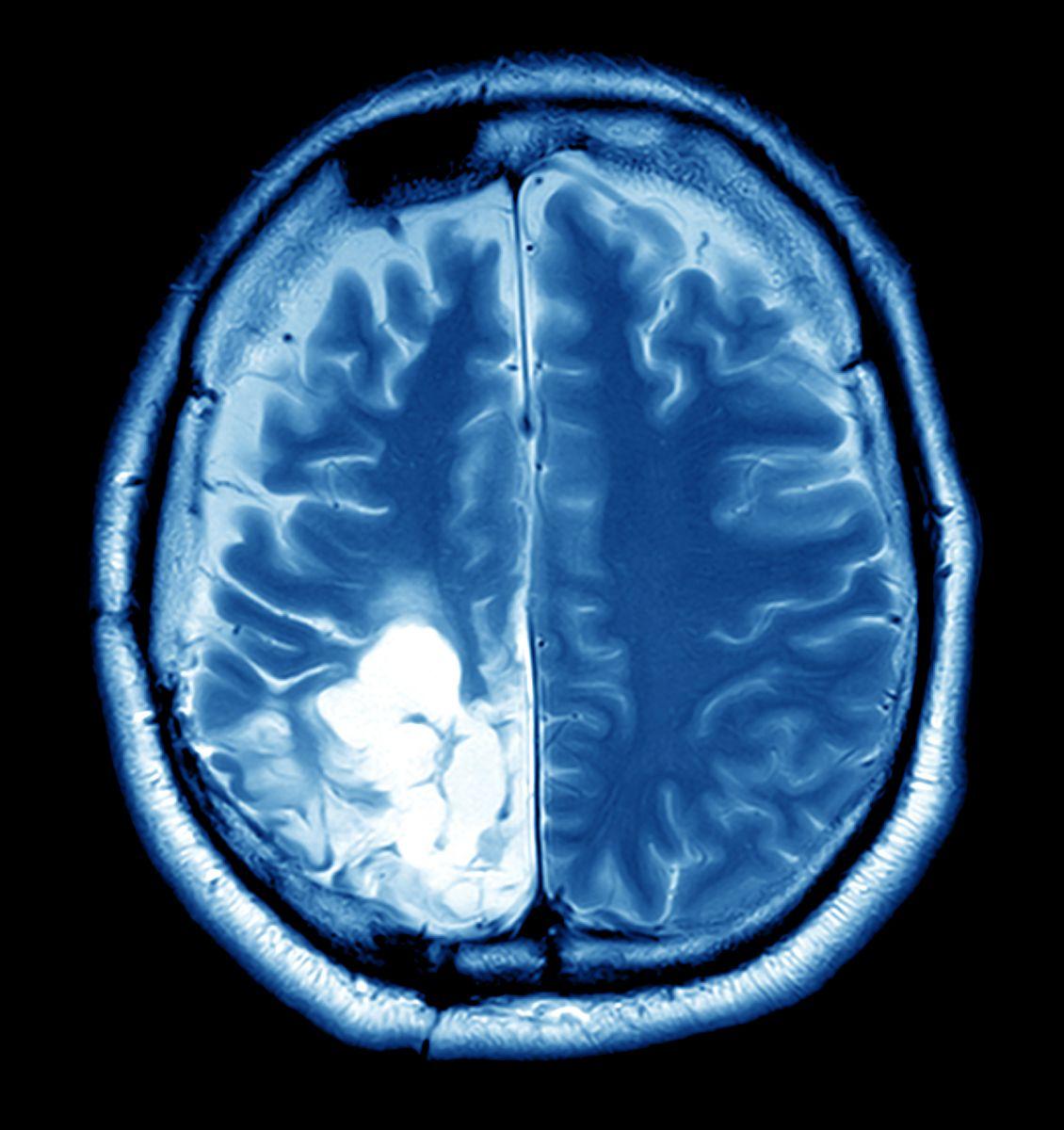 Brain Tumor Overview - Harvard Health