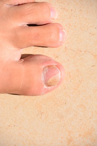 Fungal Nail Trends