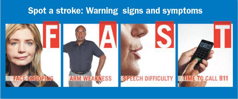Image result for fast warning signs of stroke