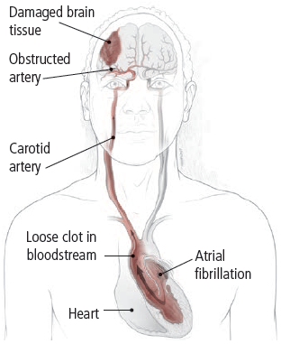 How atrial fibrillation may affect your brain - Harvard Health