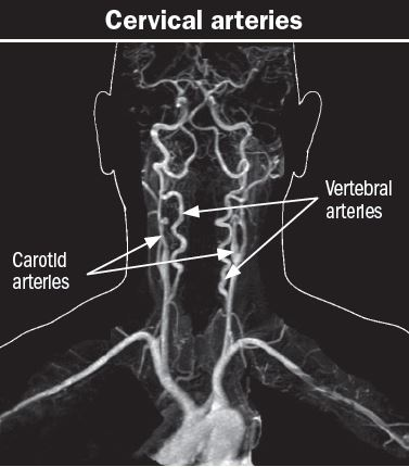 When a pain in the neck is serious - Harvard Health