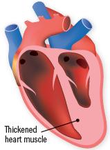 what is cardiomyopathy harvard health