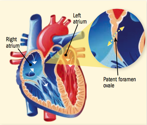 After a stroke with no clear cause, a heart repair may be in