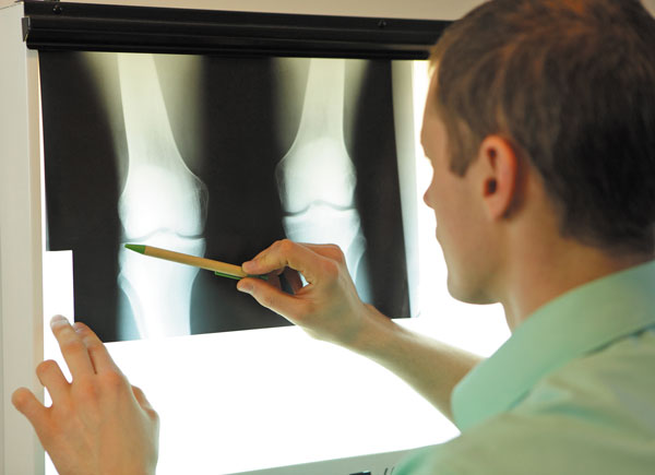 screening tool for diagnosing knee pain