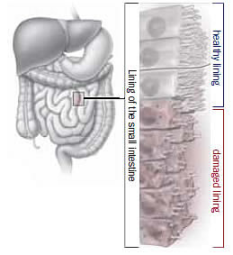 Immune system response to gluten