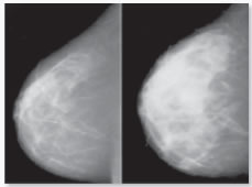 Comparing two mammograms