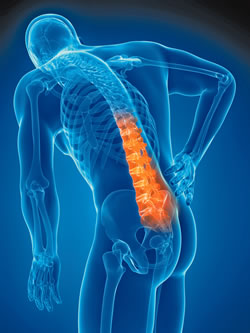 what s causing your lower back pain harvard health