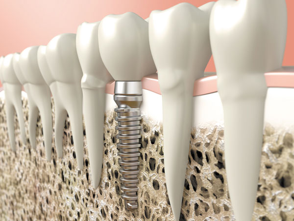 dental health implant teeth