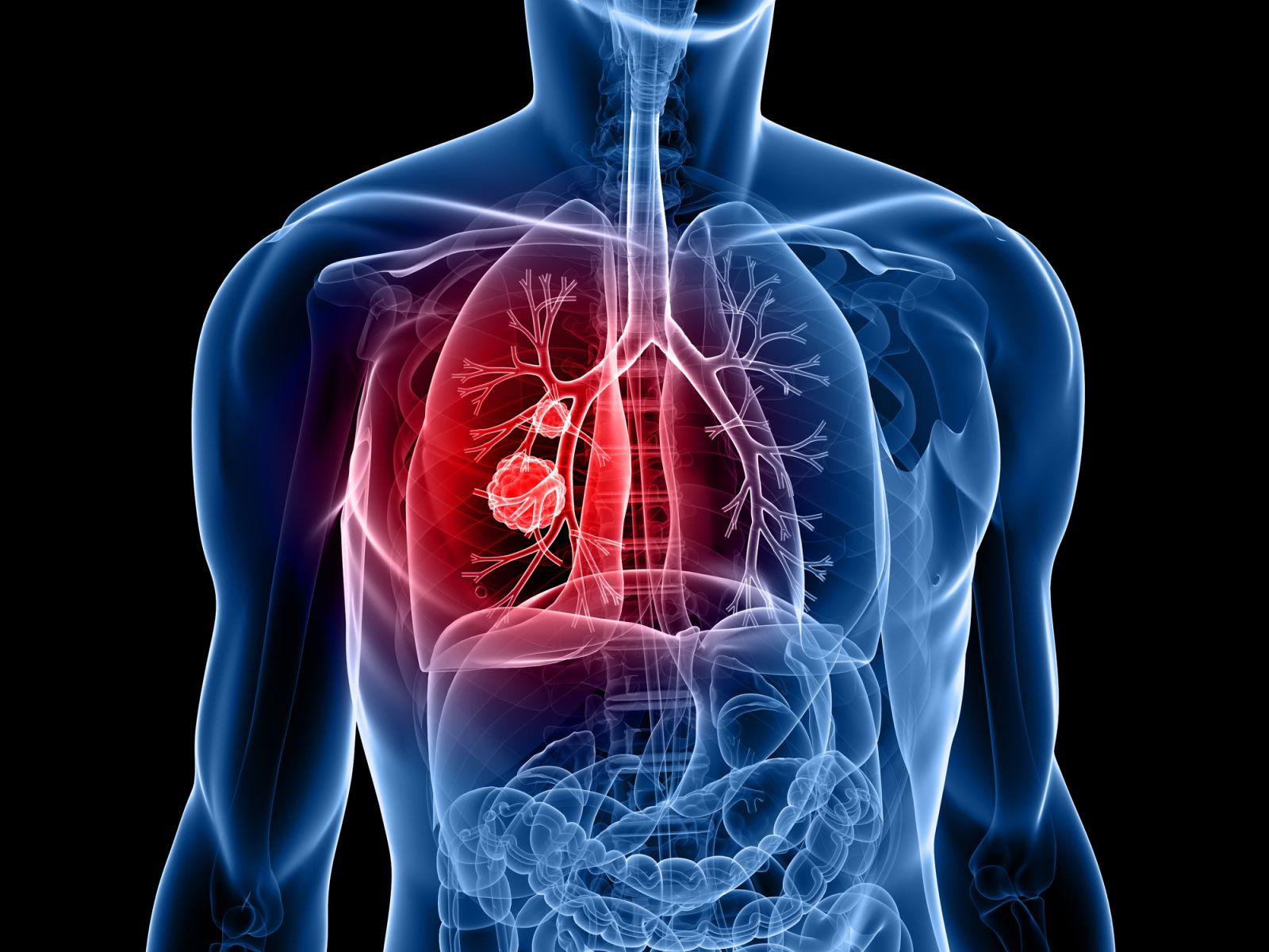 A Cancer Researcher Reflects On The Evolution Of Lung Therapies