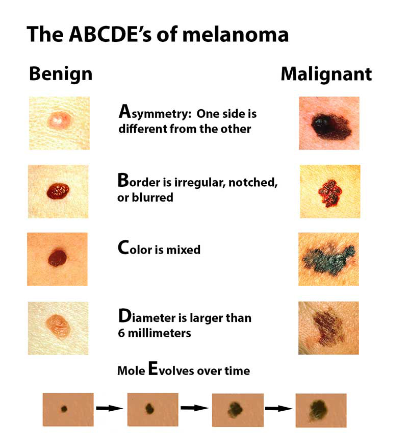 Melanoma Harvard Health
