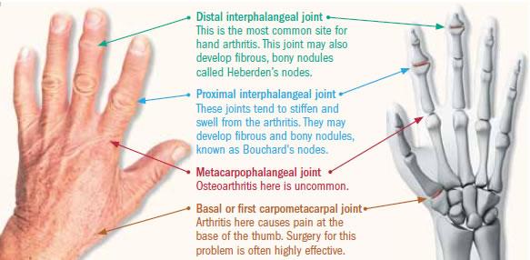 Relief for hand arthritis - Harvard Health