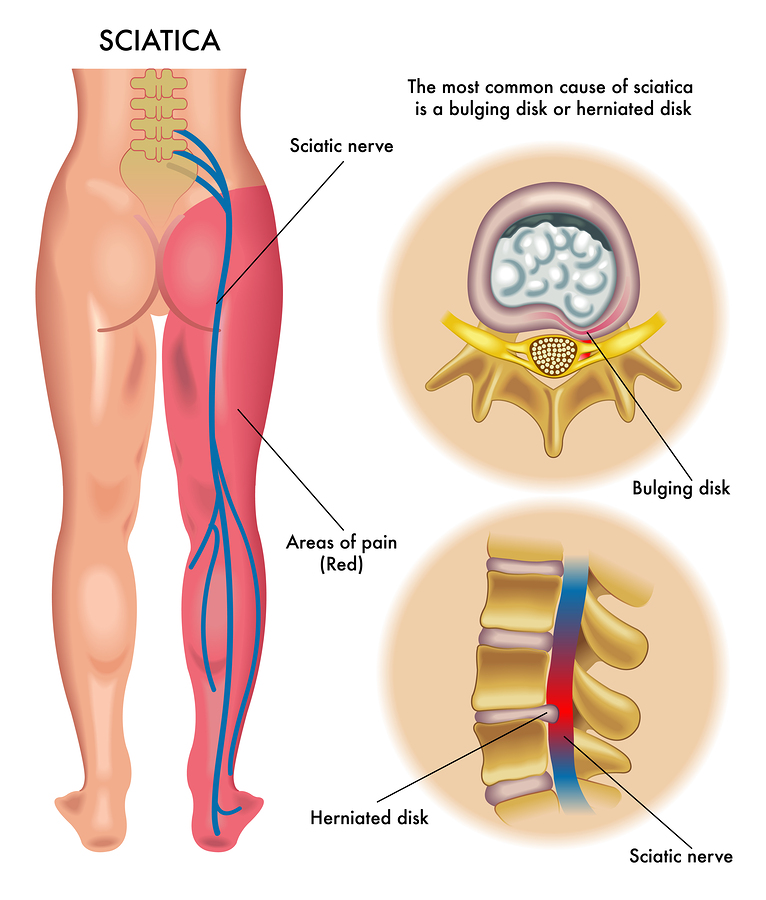 Sciatica Harvard Health