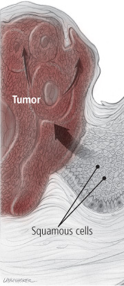 Squamous cell carcinoma - Harvard Health