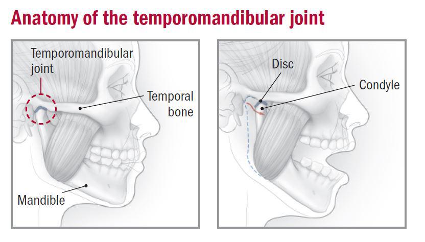 Temporomandibular joint dysfunction - Harvard Health