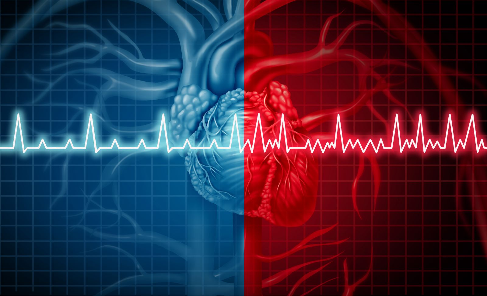 Atrial fibrillation: Common, serious, treatable - Harvard Health