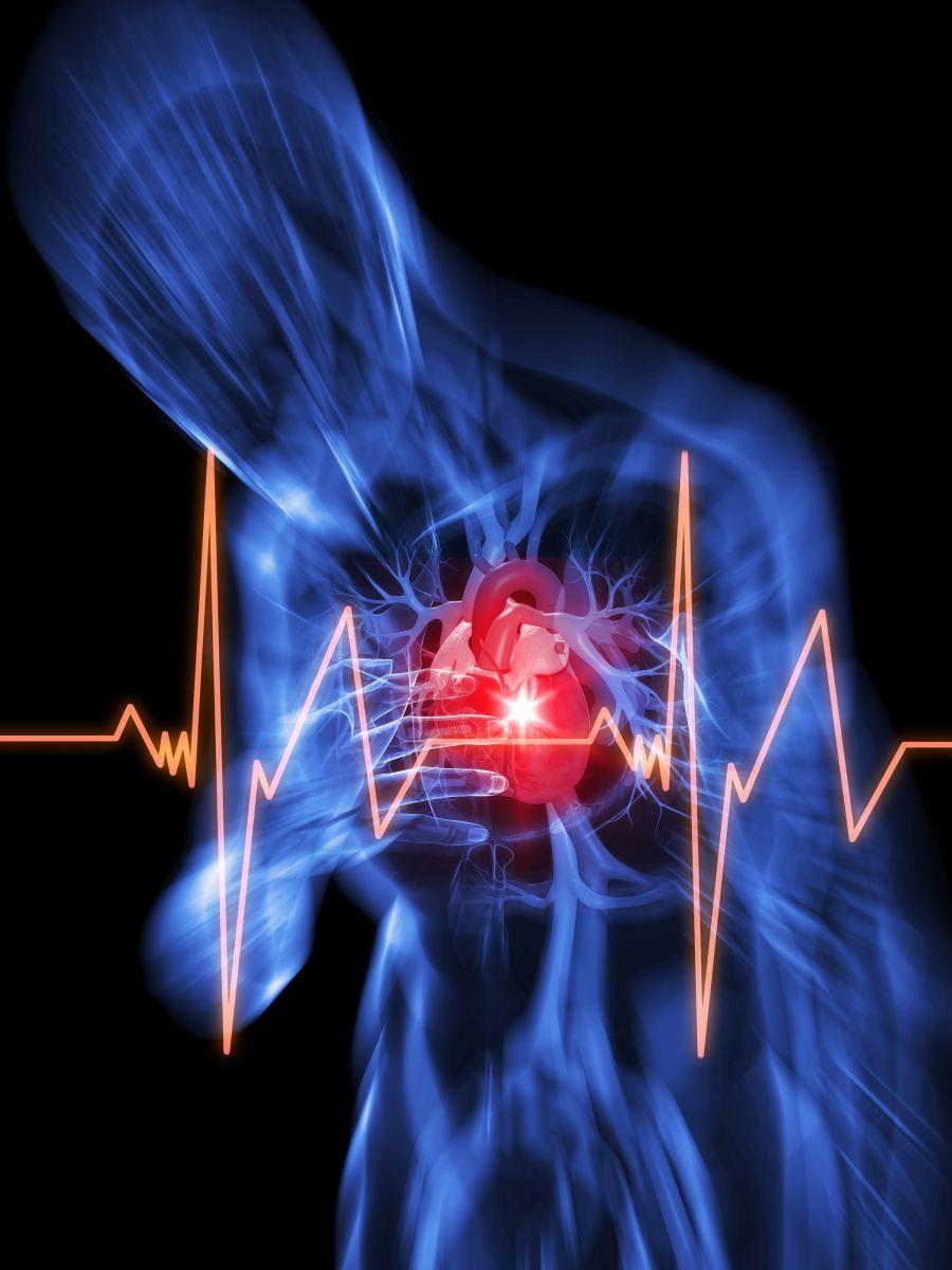 Cardiac arrest - Harvard Health