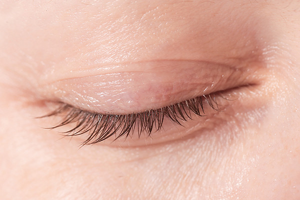 The aging eye: when to worry about eyelid problems - Harvard Health
