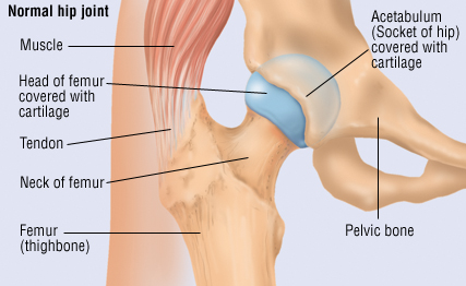 Traumatic Dislocation Of The Hip Harvard Health