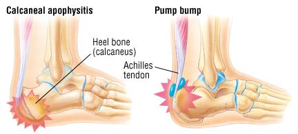 Heel Pain - Harvard Health