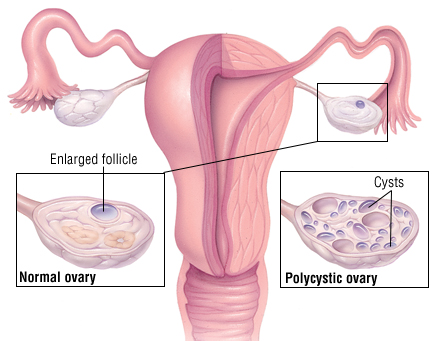 Polycystic Ovary Syndrome Harvard Health