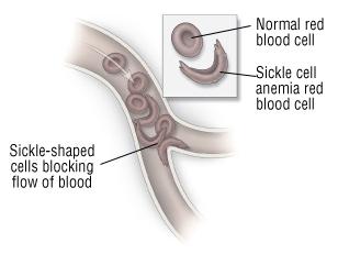 Sickle Cell Anemia - Harvard Health