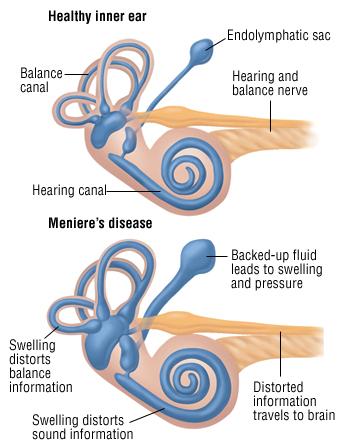 Meniere S Disease Harvard Health