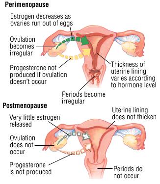 Menopause And Perimenopause - Harvard Health