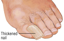 The Deformities May Resemble A Fungal Infection Nails Can Be Thickened Or Discolored And Lift Away From Nail Bed Which Causes Cosmetic Concerns