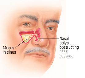 Nasal Polyps - Harvard Health