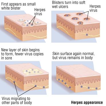 Genital Herpes - Harvard Health
