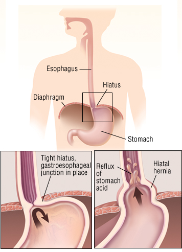 how hernia looks like