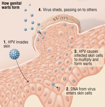 hpv virus symptoms treatment