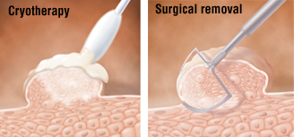 Hpv wart removal over the counter, Hpv removal procedure
