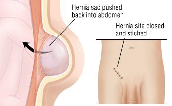 Hernia scrotum sex