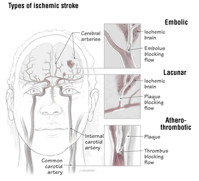unlike strokes that damage the cortex, lacunar strokes are only rarely  caused by a blood clot (also called a