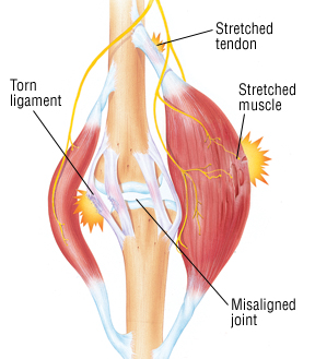 Muscle Strain - Harvard Health