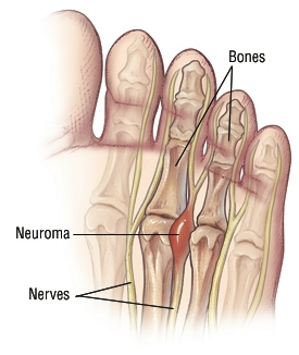 Mortons neuroma harvard health a mortons neuroma usually develops between the third and fourth toes less commonly it develops between the second and third toes solutioingenieria Images