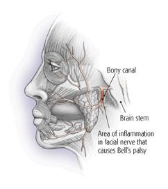 bell's palsy nerve pain