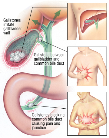 Gallbladder Stones Natural Treatment Side Effects