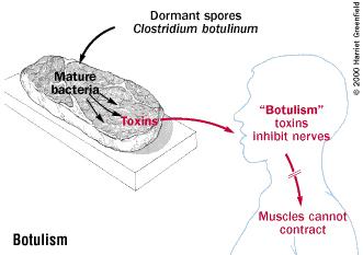 how to get botulinum toxin
