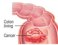 Bowel Obstruction - Harvard Health