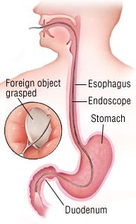 Swallowed Object Harvard Health