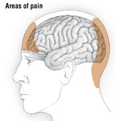 Tension Headache - Harvard Health