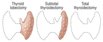 thyroidectomy harvard health