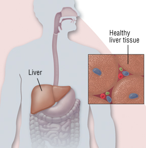 can alky hepatitis lead to stick pain